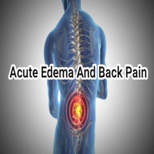 Health & Fitness - Acute Edema and Back Pain - TrainTech USA